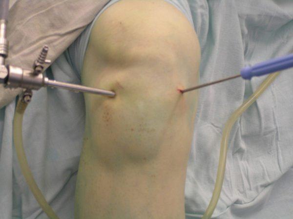 Артроскопическое проникновение в сустав