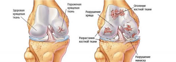 Клиническая картина поражения коленного сустава