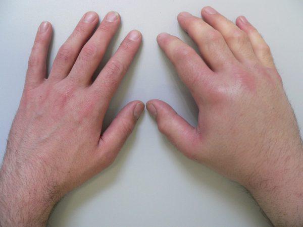 Артрит кисти сопровождается болью