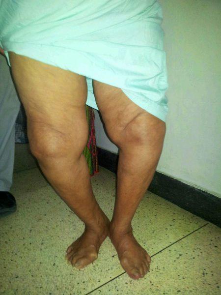 Деформация колена из-за гонартроза