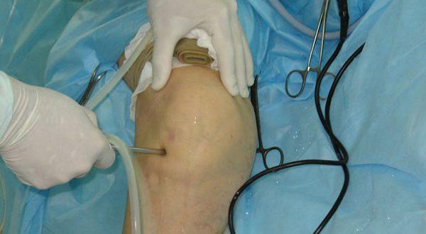 Оперативное лечение коленного сустава