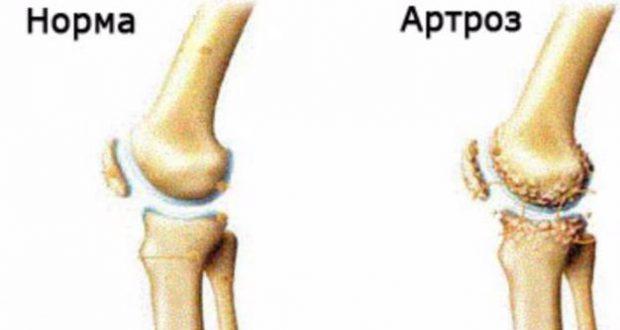 Здоровое и больное колено: в чем разница