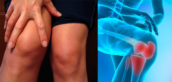 Рентгеновский снимок колена, подверженного разрушению и боли