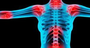 В каких областях может концентрироваться суставная боль