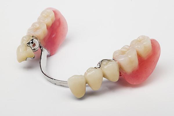Зубное протезирование и его результат
