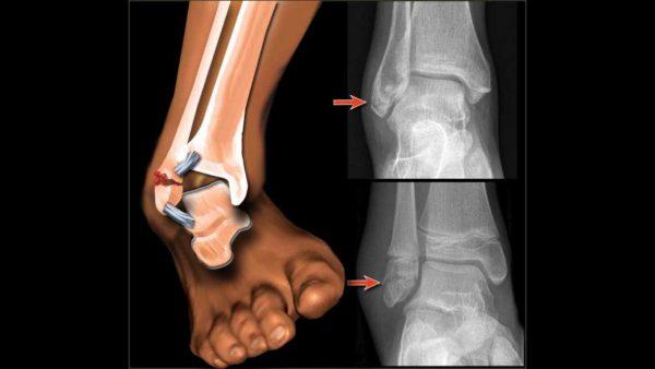 Рентген-снимок при переломе сустава