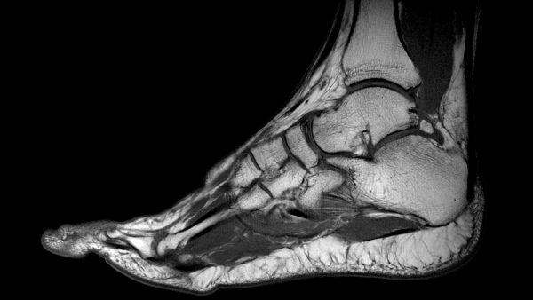 Как выглядит снимок МРТ сустава